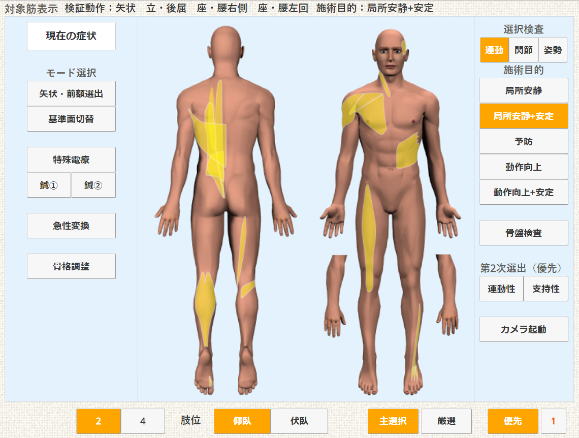 動きのバランスの悪い筋肉をエキスパート型AI(人工知能)が分析して、画面にわかりやすく表示します