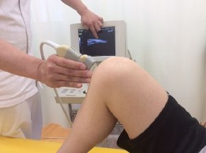膝のエコー検査
